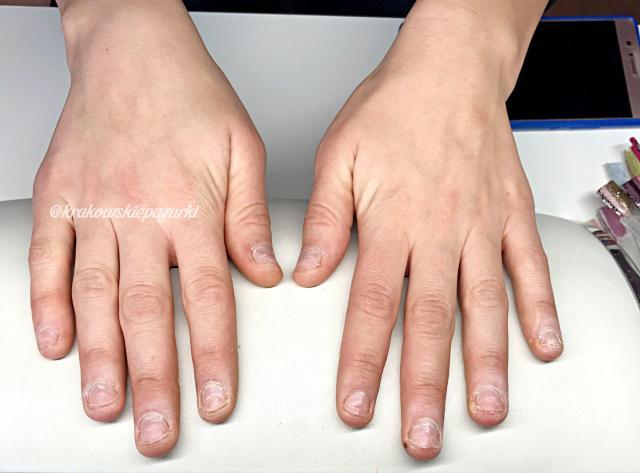 onychofagia, obgryzanie paznokci, krok po kroku, zapuszczanie paznokci, paznokcie wzory, paznokcie porady, ekspert