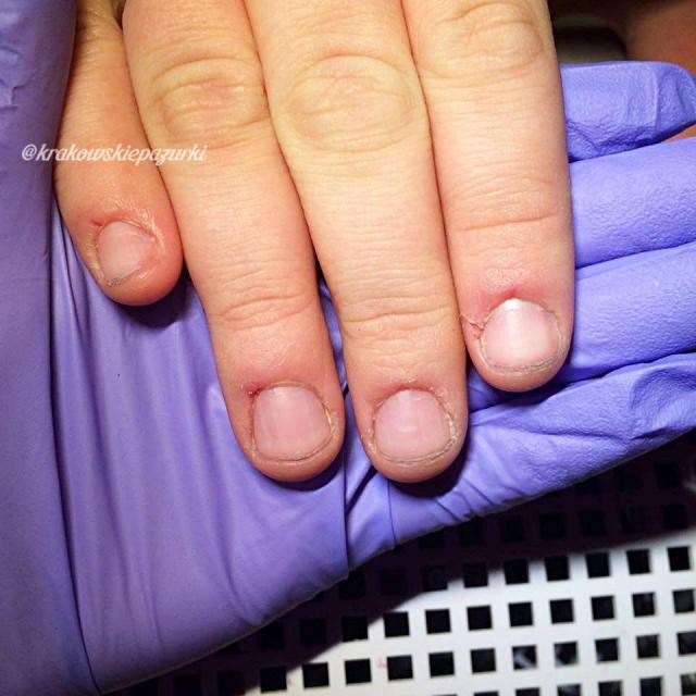 obgryzanie paznokci, krok po kroku, zapuszczanie paznokci, paznokcie wzory, paznokcie porady, ekspert, onychofagia