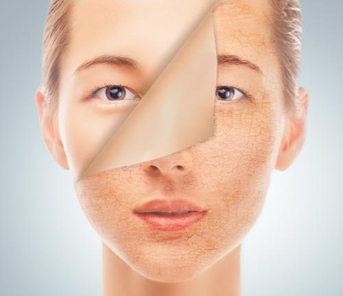 Atopowe zapalenie skóry twarzy - pielęgnacja cery atopowej