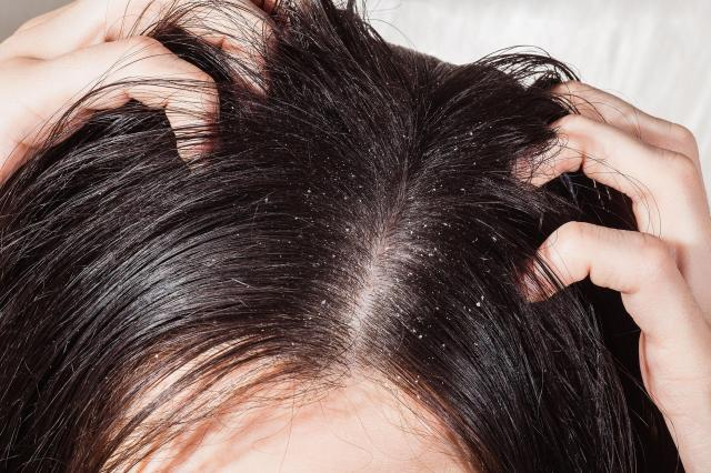 Łojotokowe Zapalenie Skóry Głowy (ŁZS) - Co to jest? Jak ją pielęgnować?