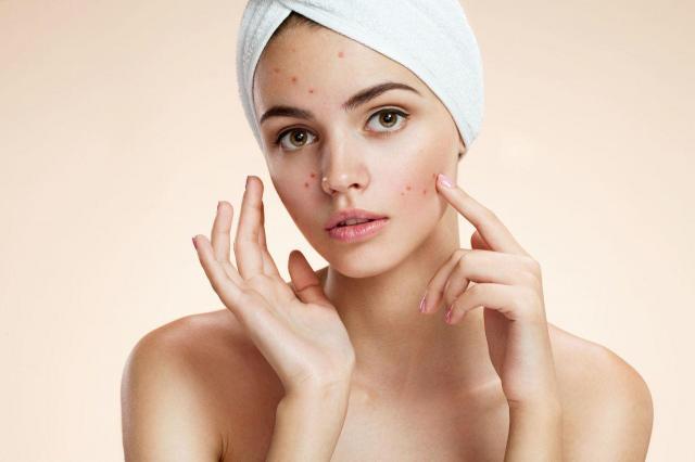 5 skutecznych sposobów na nawilżoną skórę przez całą zimę