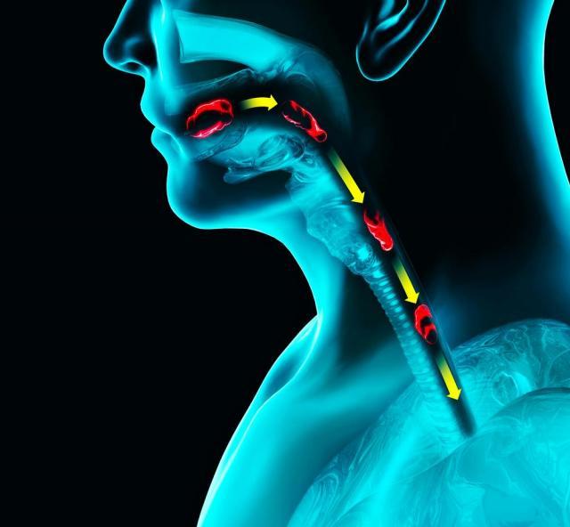 Dysfagia – porady, objawy i leczenie